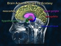 Участки мозга, чувствительные к воздействию экстази